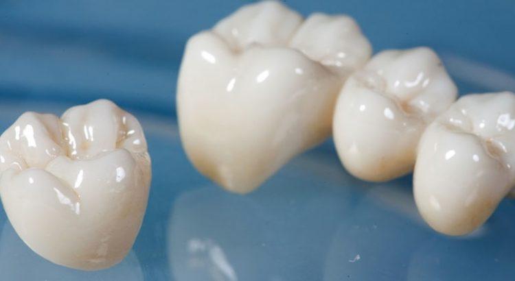 crown, tooth cap, missing teeth