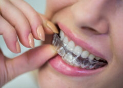 braces, retainers, orthodontist, clip treatment, teeth correction, crooked teeth, drifting of teeth
